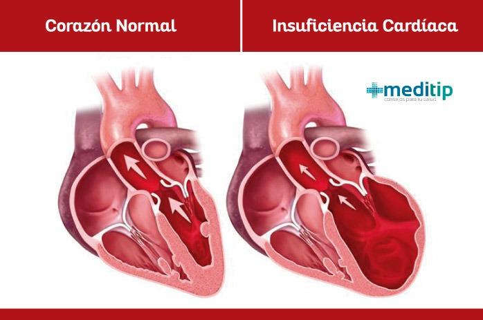 Corazón con insuficiencia cardiaca y corazón normal