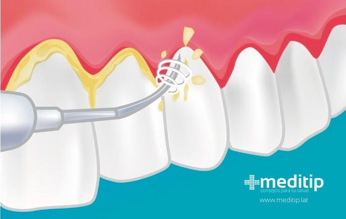 limpieza de sarro en un diente