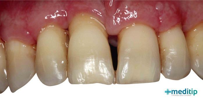 foto de dientes con periodontitis