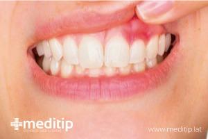 boca mostrando encías con gingivitis