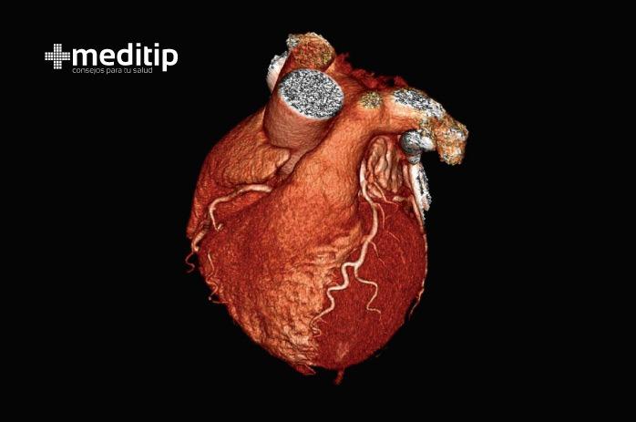 Imagen tridimensional del corazón