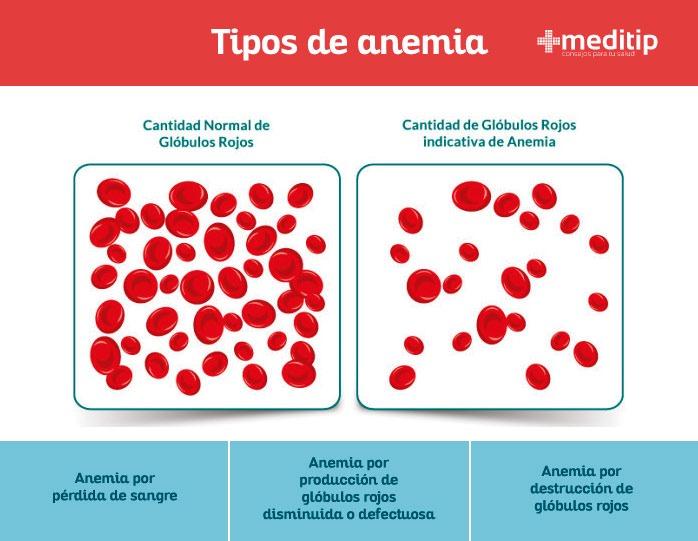 Existen más de 400 tipos, sin embargo, estos se clasifican en 3 grupos principales, los cuales son: Pérdida de sangre Producción de glóbulos rojos disminuida o defectuosa Destrucción de glóbulos rojos
