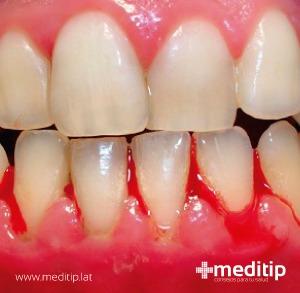 encías sangrantes a causa de gingivitis