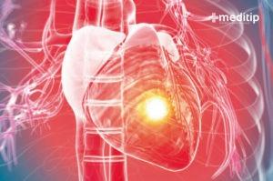 Corazón con enfermedad cardiaca