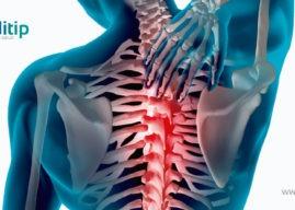 Dolor de espalda: causas, síntomas y tratamiento