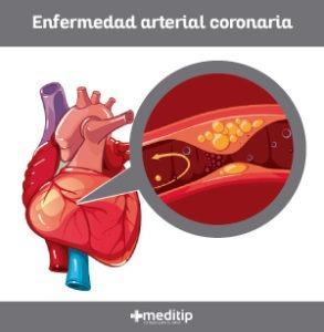 Enfermedad arterial coronaria