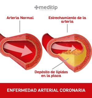 comparación entre arteria sana y otra estrecha por acumulación de placa