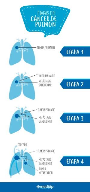 Etapas cáncer de pulmón