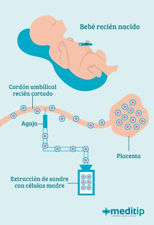Extracción de células madre