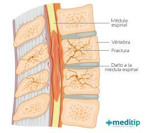 fractura vertebral