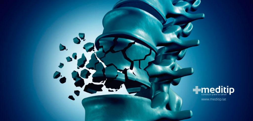 Causas del dolor de espalda: fractura vertebral