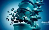 Fracturas por compresión vertebral