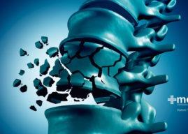 Fracturas vertebrales: causas, diagnóstico y tratamiento