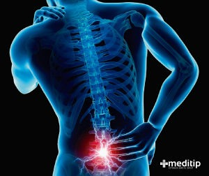 Lumbalgia o dolor de espalda