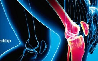 Tipos de artritis: osteoartritis