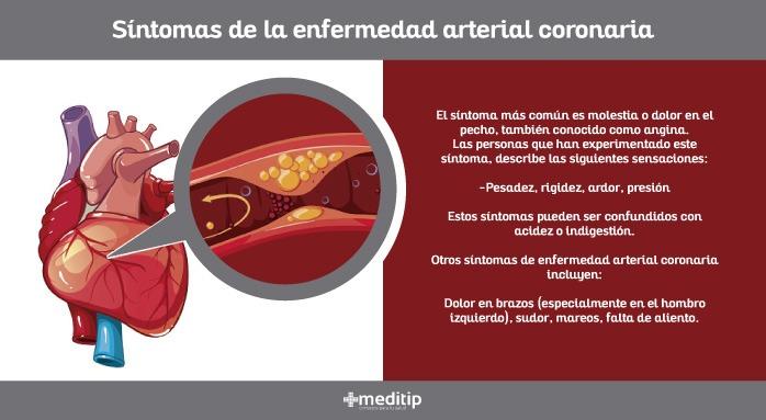 Síntomas de la enfermedad arterial coronaria