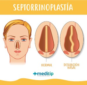 Septorrinoplastía