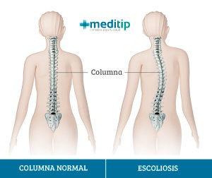 El dolor de espalda y la escoliosis