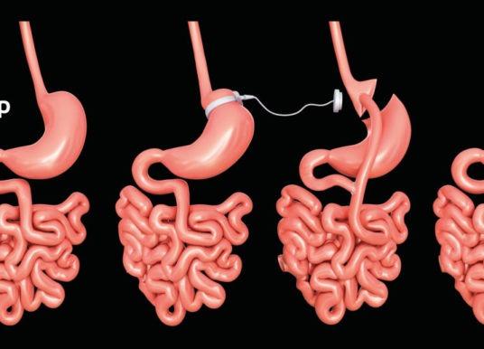 Cirugía bariátrica: definición, diferencias y beneficios