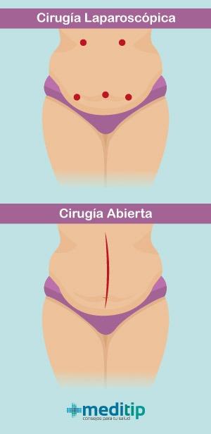Diferencia entre cirugía abierta y laparoscópica