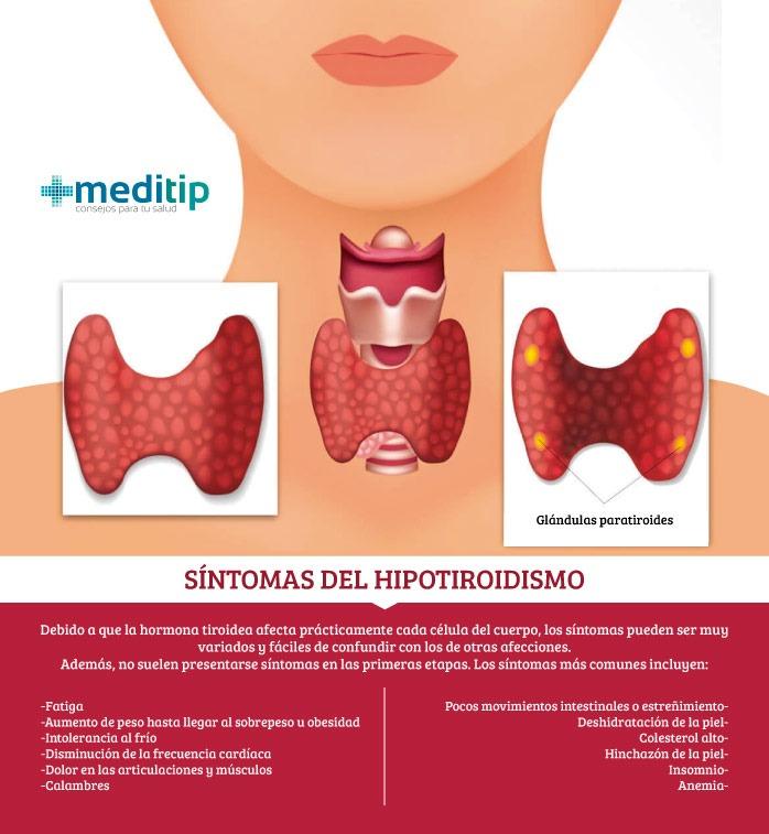 Síntomas del hipotiroidismo