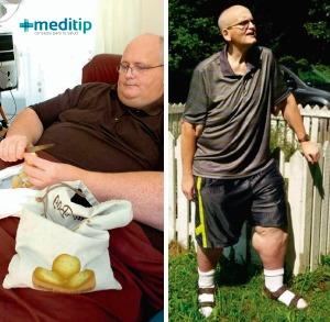 Paul Mason, quien perdió 150 kilos después de la cirugía para bajar de peso