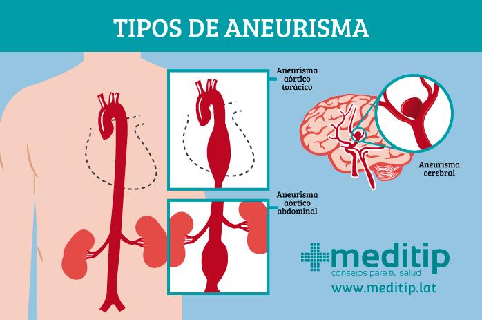 Tipos de aneurismas