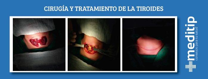 cirugía y tratamiento de la tiroides