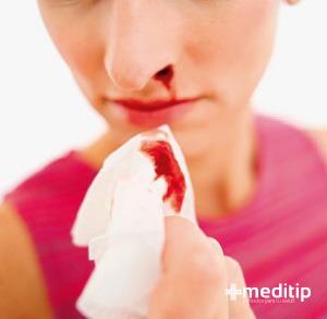hemorragia nasal, sangra la nariz