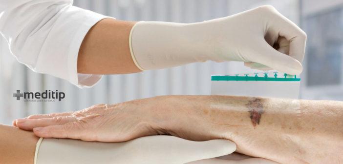 Apósitos para heridas: tipos e indicaciones