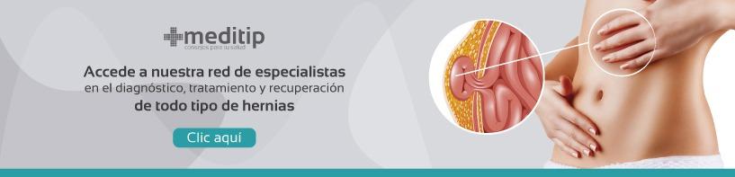 Consulta de valoración de hernias con un precio especial