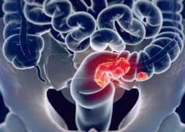 Cáncer de colon: causas, síntomas y diagnóstico