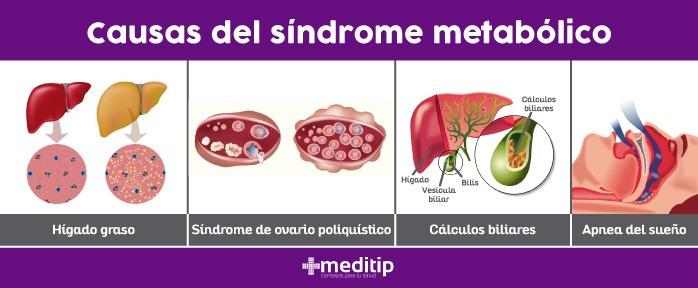 Causas del síndrome metabólico