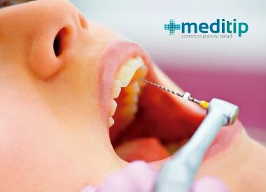Procedimiento de endodoncia
