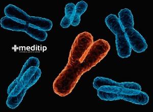 Defecto cromosómico