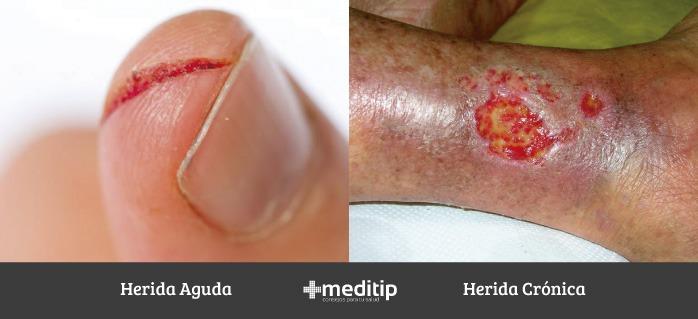 Fisioterapia para el cuidado de heridas: herida aguda y herida crónica