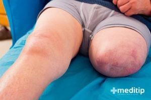 Hombre con una pierna amputada
