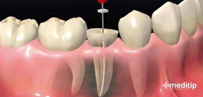 Endodoncia: tratamiento y procedimiento
