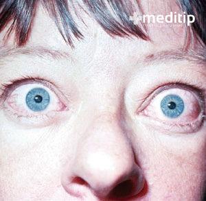 Tratamiento deficiente del hipertiroidismo
