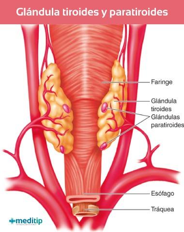 Glándula tiroides o paratiroides