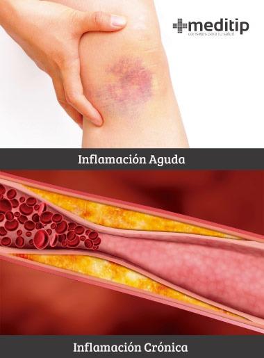 Inflamación aguda y crónica