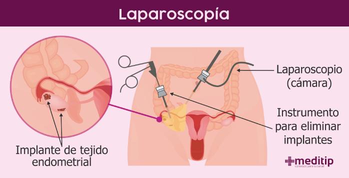 Laparoscopia para una edometriosis