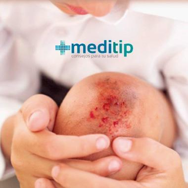 Causas del dolor de rodilla: niño con herida, infección y dolor en la rodilla