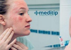 Dermatitis: tipos, causas y complicaciones