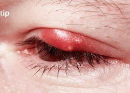 Inflamación: causas, síntomas y tratamiento
