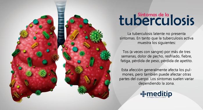 Síntomas de la tuberculosis