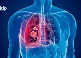 Tuberculosis: definición, causas y tratamiento