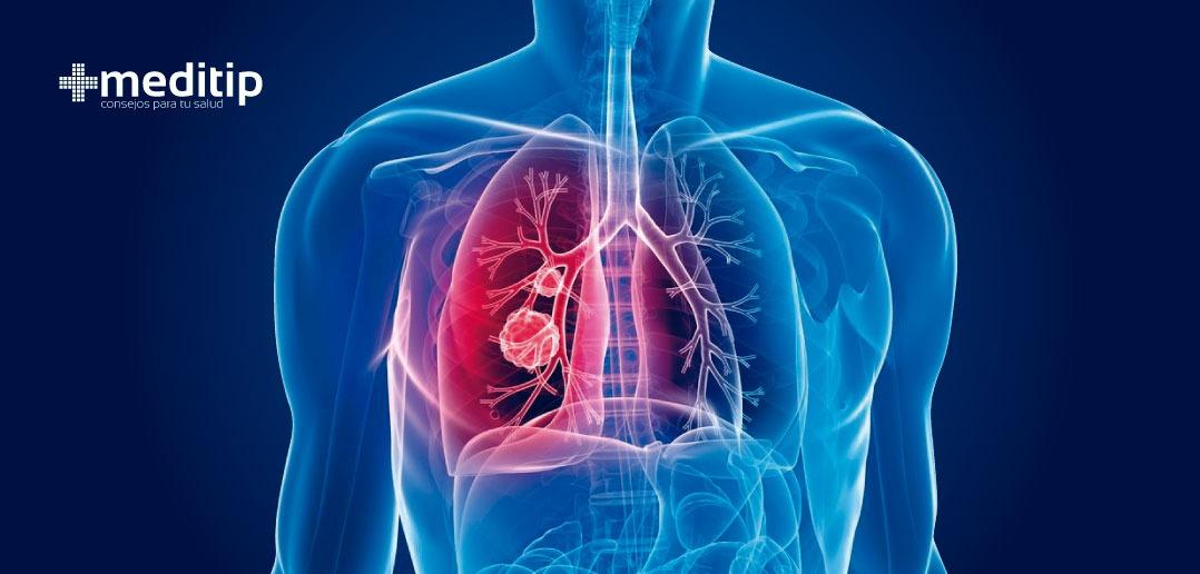 Cómo tratar la tuberculosis