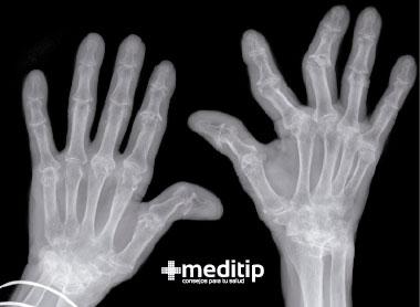 Enfermedades autoinmunes - Artritis reumatoide