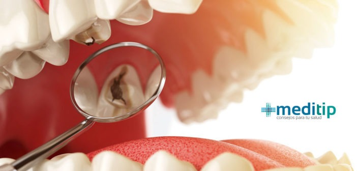 Caries dental: definición, causas y diagnóstico